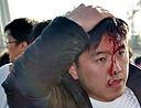 组图:辽宁北京球迷闹群殴 打爆头颅鲜血直流