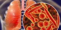 全国首例、二例新冠肺炎患者逝者遗体解剖完成,有何重大意义?